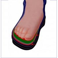 ортопедическая обувь, детская ортопедическая обувь