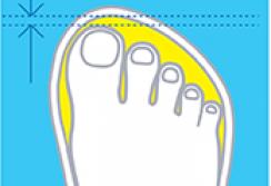 Как правильно подобрать размер ортопедической обуви?