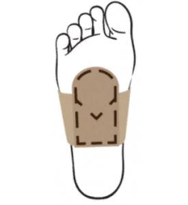 Манжета-стяжка переднего отдела стопы с метатарзальным валиком 21МС
